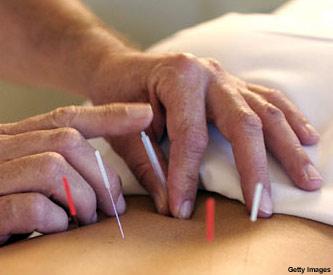 acupuntura_f3