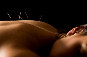 Acupuncture